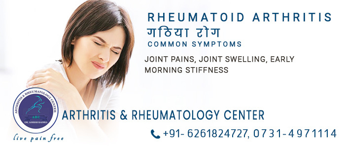 Rheumatoid Arthritis Common Symptoms Joint Pains, Joint Swelling, Early Morning Stiffness