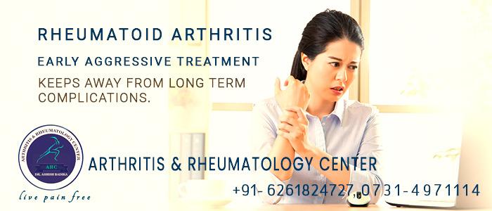 Rheumatoid Arthritis Early Aggressive Treatment Keeps Away From Long Term Complications